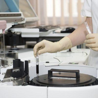 Blood Vials Centrifuge